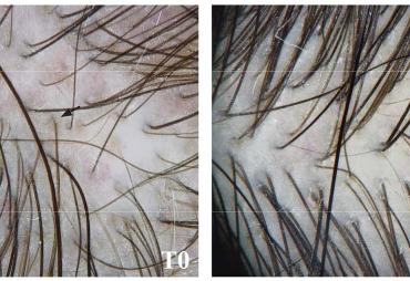 L'huile de nigelle est efficace contre la chute des cheveux et favorise leur croissance