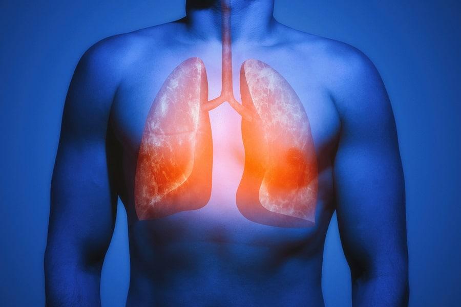 huile de nigelle asthme